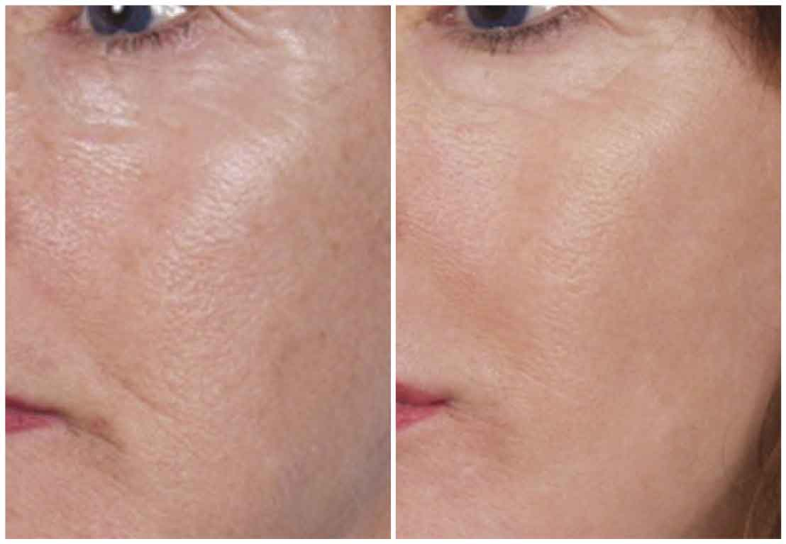 Nano Laser peel before and after