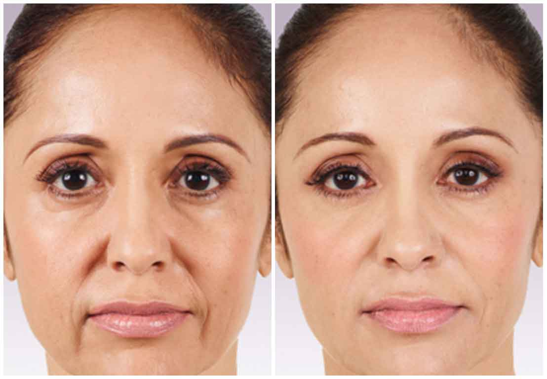 juvederm before after