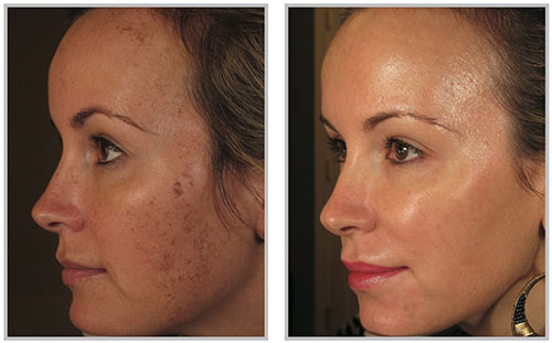 BBL laser therapy | before and after