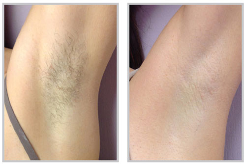 Forever Bare BBL Hair Removal Before and After