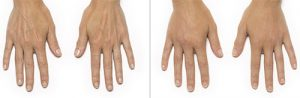 Hands Filler Before and After