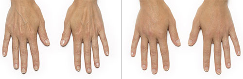 Radiesse Hand Rejuvenation | before and after
