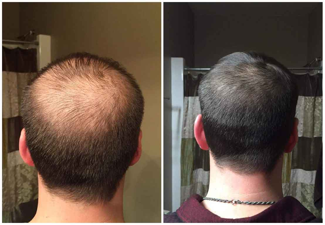 prp laser hair restoration before after