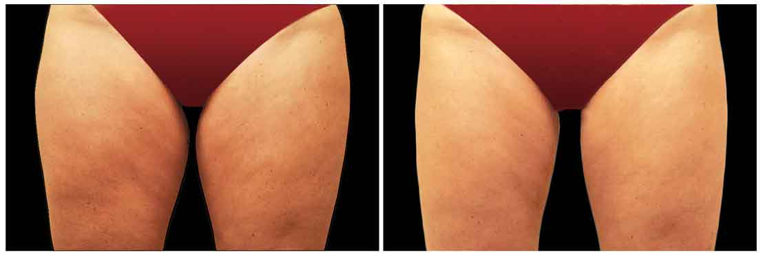 Coolsculpting before + after