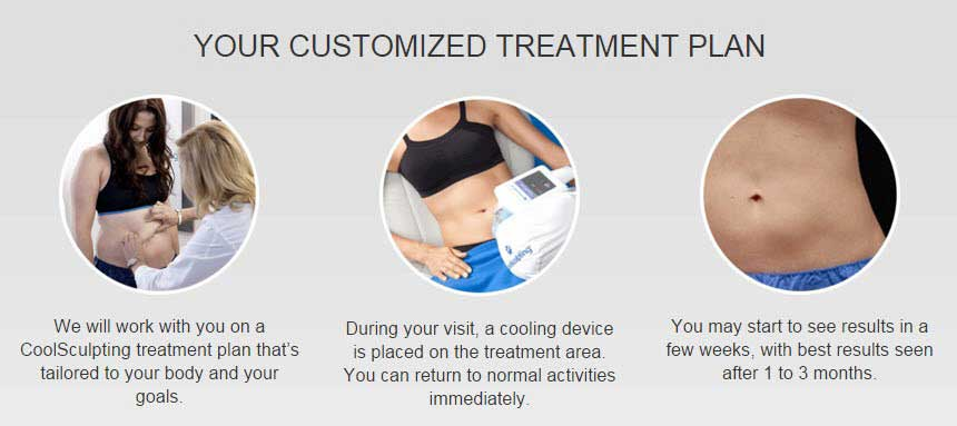 CoolSculpting Treatment Plan