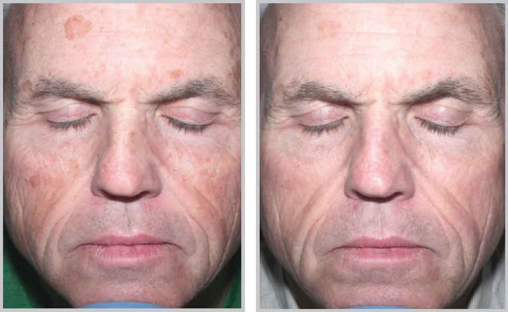 Halo™ & Halo Pro Laser Treatments | Altaire Clinic