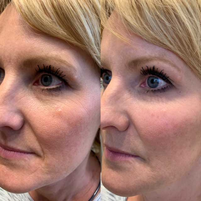 PRP Filler Before and After