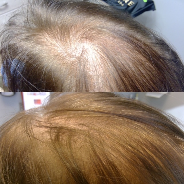 Exosomes Hair Restoration Before and After