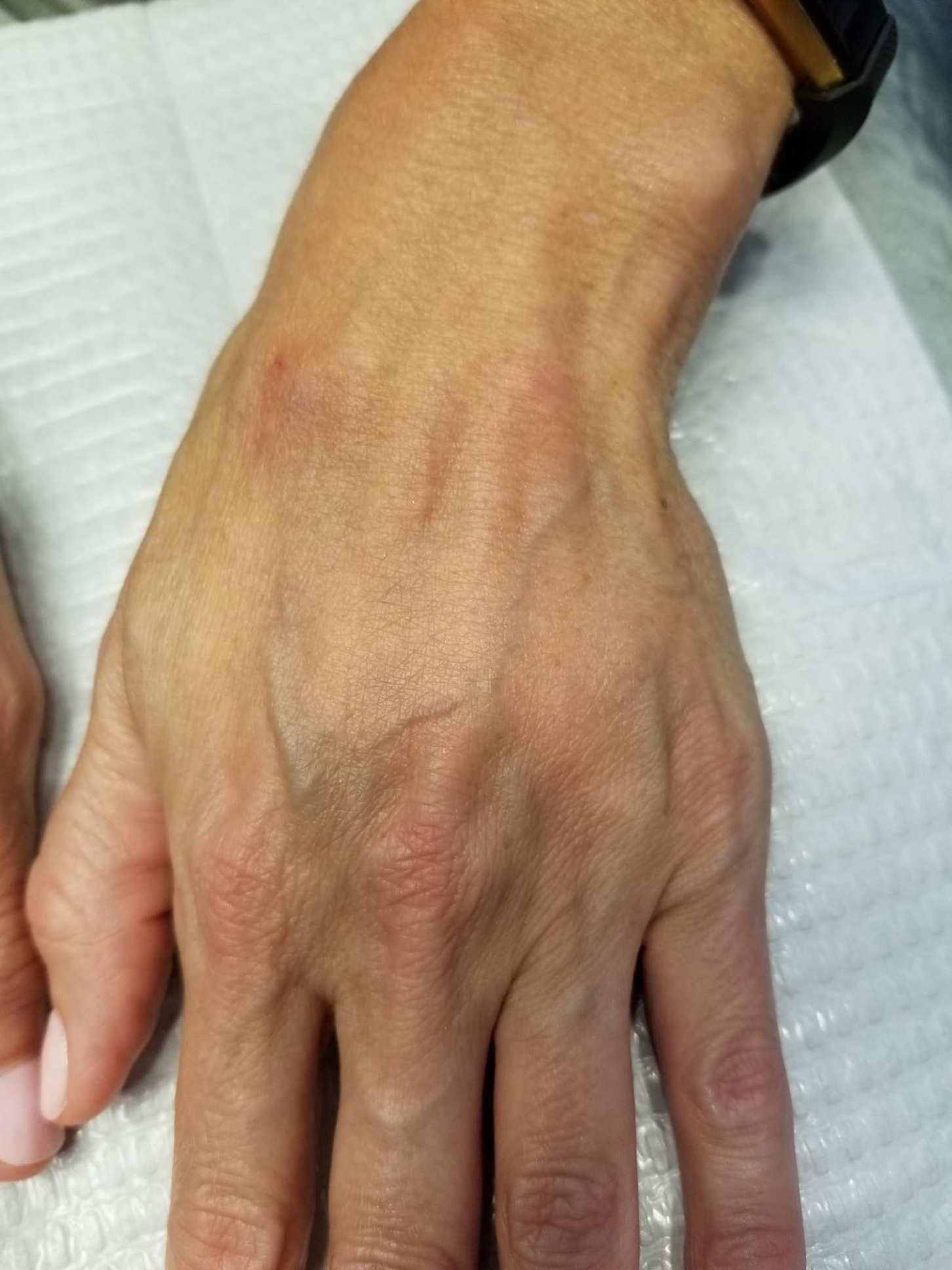 Hand Filler Before