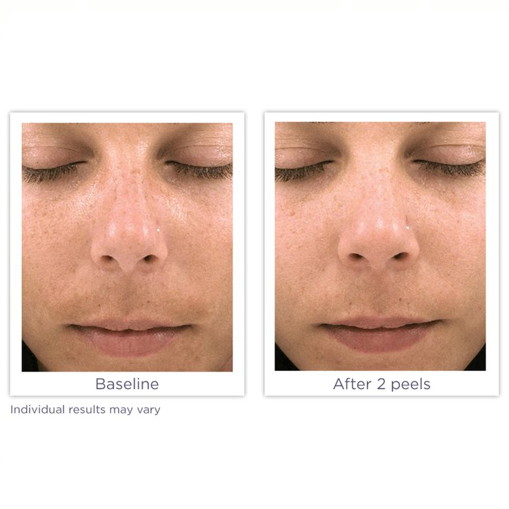Before and After Glytone Peel